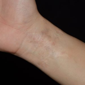 Wrist Tattoo After Excision
